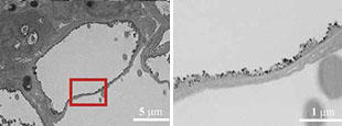 Images captured by transmission electron microscopy (TEM)